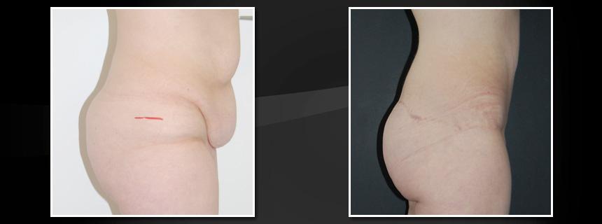 Après votre opération, il est courant d'avoir un excès de peau. Le body lift vous permet de récupérer un corps tel que vous l'auriez si vous n'aviez jamais été victime d'obésité.
